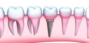 c.i.s.o., ciso, clinica odontologica cucuta, samuel fuentes, odontologia cucuta, diseño de sonrisa cucuta, cirugia oral y maxilofacial cucuta, blanqueamiento dental cucuta, endodoncia cucuta, odontologia general cucuta, rehabilitacion oral cucuta, periodoncia cucuta, odontologia, cucuta